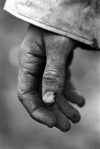 Archäologische Ausgrabungen sind harte körperliche Arbeit, die ihre Spuren hinterlässt. Foto: Renaud Sterchi.