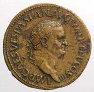 Paduaner-Medaille auf den Kaiser Vespasian mit dem Bildnis Vespasians und der bezeichnenden Darstellung ROMA RESVRGES, welche die Unregelmäßigkeiten des überprägten Sesterzen erkennen lässt.